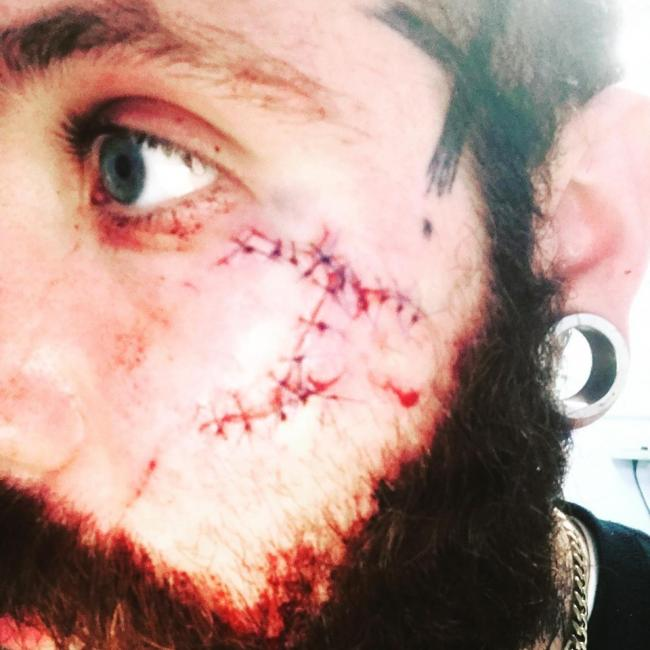 Brutal - Nathan French was left with a slash in his cheek