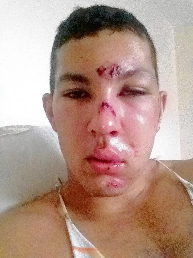 Gazette: Richie Robins pictured after the attack.